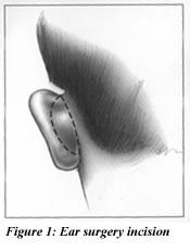 Prominent Ear Surgery Illustration