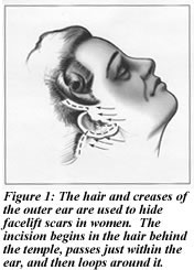 Figure 1: Facelift Illustration