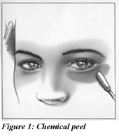 Figure 1: Chemical Peel Illustration