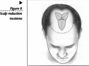 Scalp Reduction Incisions Illustration