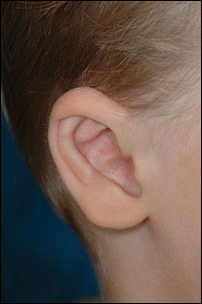 Prominent Ear Surgery After