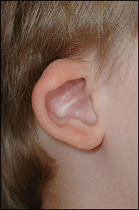 Prominent Ear Surgery Before