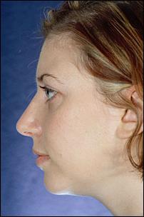 Nasal Surgery After