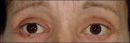 Eyebrow Surgery After