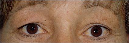Eyebrow Surgery Before