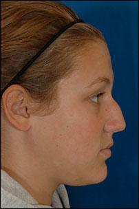 Nasal Surgery Before