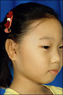 Microtia Repair After