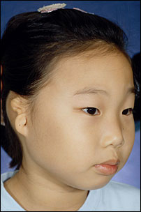 Microtia Repair Before