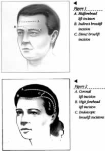 Eyebrow Surgery Illustration