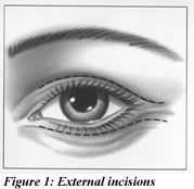 Figure 1: External Incisions Illustration