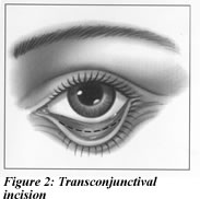 Figure 2: Transconjunctival Incision Illustration